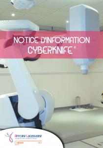 Notice d'information CyberKnife